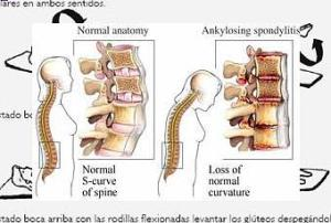 ejercicios-pilates-espondilitis-anquilosante-T-ZjRk3Z