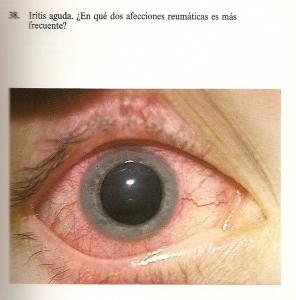 oftalmologia_y_sus_anexos_20110727_1622431037